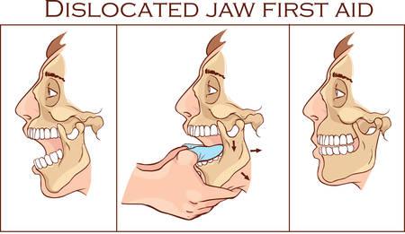Vector illustration d'une première aide disloquée Jaw Banque d'images - 69000126
