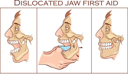 Vector illustration of a first aid dislocated Jaw Ilustração
