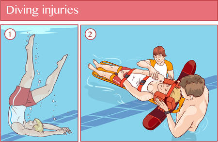 aid: Vector illustration of a Diving injuries