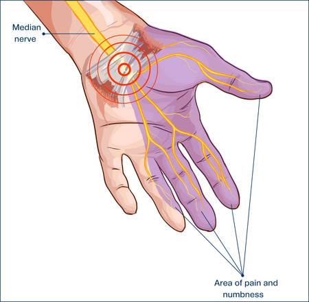 dedo: Mão do nervo mediano comprimido do ligamento carpiano transversal Ilustração