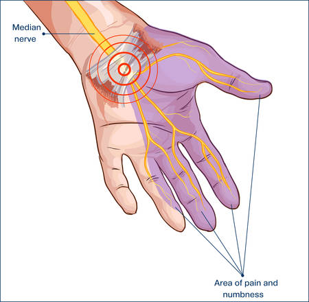 tunnels: transverse carpal ligament compressed median nerve hand