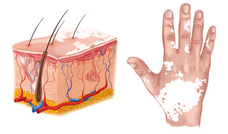hereditary: medical Illustration of the effects of vitiligo