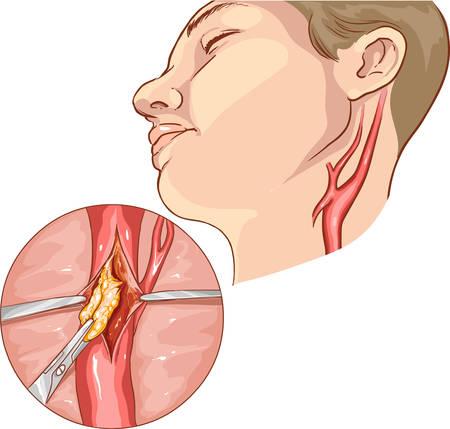 vector illustration of a Carotid Endarterectomy