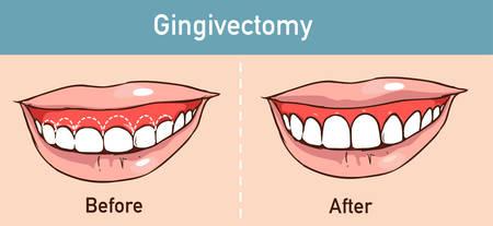 vector illüstration of a Gingivectomy Ilustração
