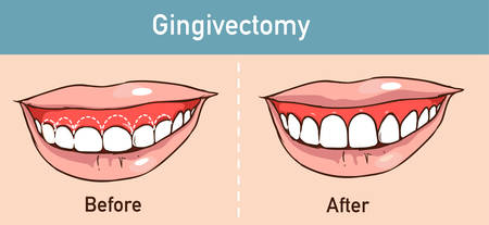 vector illüstration of a Gingivectomy Çizim