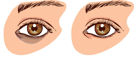 The womans face with dark circles under the eyes. The concept of care for eye skin. before and after Ilustração