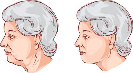 be careful: vector illustration of a  Face lift before and after treatment Illustration