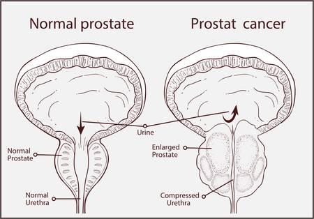Vector - Prostatic hypertrophy Vector Illustration