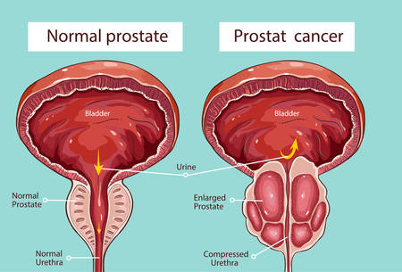 prostatic: Vector - Prostatic hypertrophy Illustration