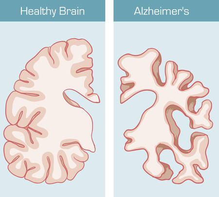 affecting: Alzheimers Disease is a medical condition affecting the brain