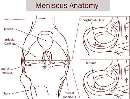 vector illustration of a meniscus tear and surgery