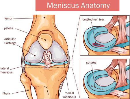 vector illustratie van een Meniscus traan en operatie Stock Illustratie