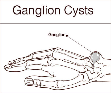 vector illustration of a Ganglion cyst Illustration