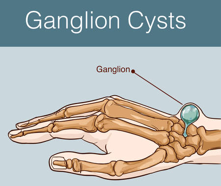 vector illustration of a Ganglion cyst Illustration