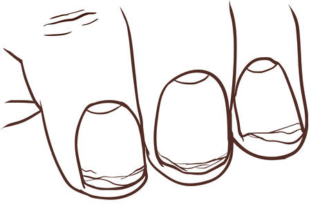 illustration of healthy and broken nail illustration.