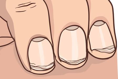 illustration of healthy and broken nail Stock Illustratie