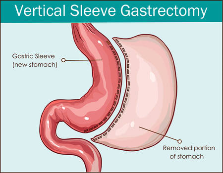 Vector illustration of Vertical Sleeve Gastrectomy
