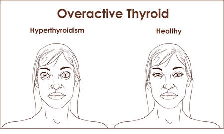Face of an adult female exhibiting the symptoms of hyperthyroidism. Stock Illustratie
