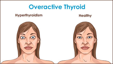 Face of an adult female exhibiting the symptoms of hyperthyroidism. Illustration