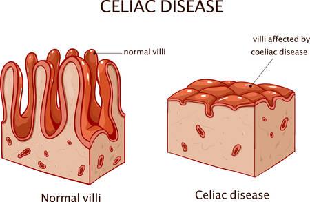Enfermedad celíaca o enfermedad celíaca. intestino delgado que muestra enfermedad celíaca manifestada por embotamiento de vellosidades.