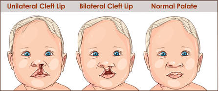illustration of a cleft palate in a child. plastic surgery. reconstruction of the upper palate