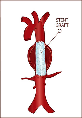 Foto de archivo - Aneurisma de la aorta torácica (descendente) y cirugía endovascular Ilustración de vector