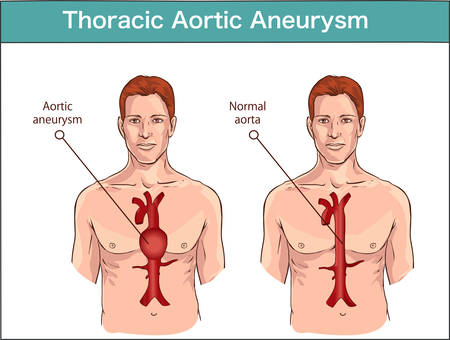 Types of abdominal aortic aneurysm. normal aorta and enlarged vessels. Vector diagram