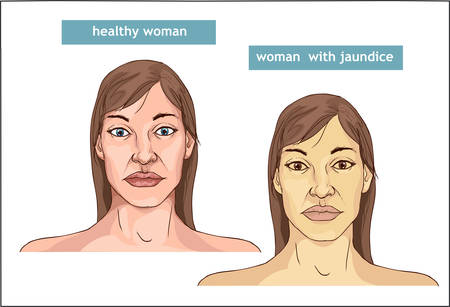 The Comparison between normal skin people and yellowing from Jaundice Stock Vector - 100836505