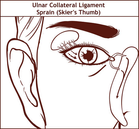 Vector illutration, anatomy of the Lacrimal apparatus Illustration