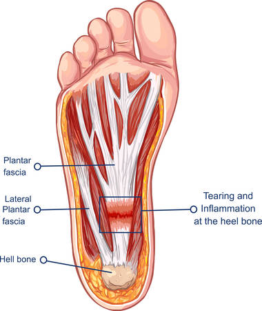Vector  illustration of a Plantar Fasciitis