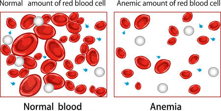 vector illustration  of a Anemia diagram  Illustration