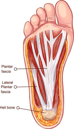Vector illustration of a Plantar fascitis illustration