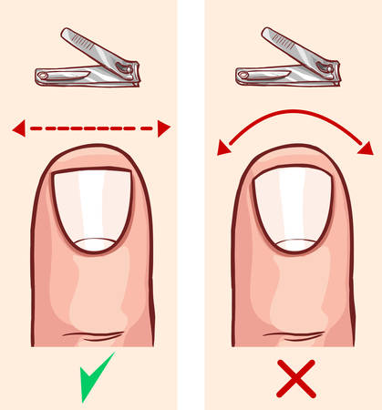 Correct and incorrect fingernail cut