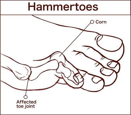 vector illustration of a hammertoes . Illusztráció