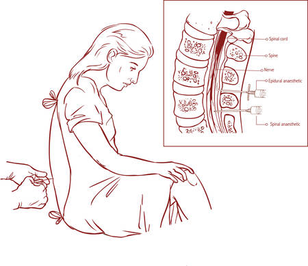 Epidural Nerve Block Injection Ilustrace