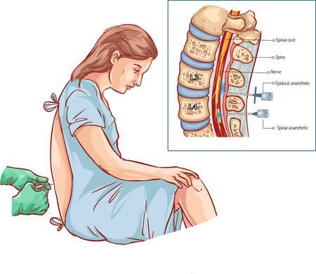 Wstrzyknięcie do zewnątrzoponowego bloku nerwowego Ilustracje wektorowe