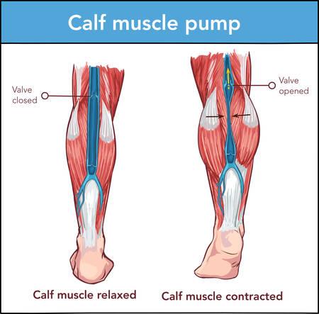Illustrazione vettoriale di una pompa muscolare del polpaccio