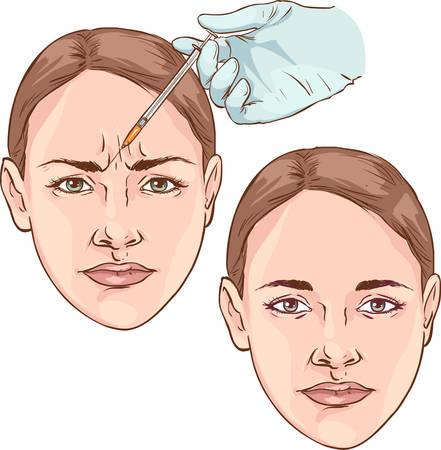 Rughe sulla fronte. ringiovanimento. chirurgia plastica Vettoriali
