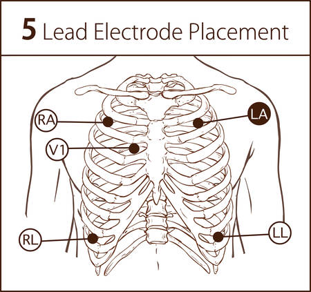 Vector illustration of a 5 lead electrode placement