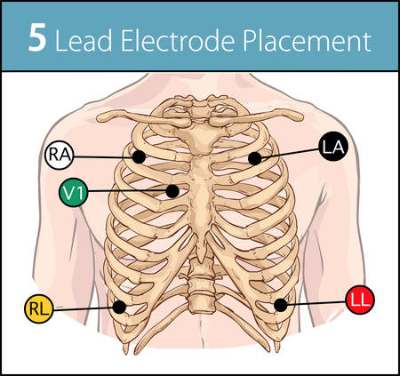 Vector illustration of a 5 lead electrode placement Stok Fotoğraf - 112340500