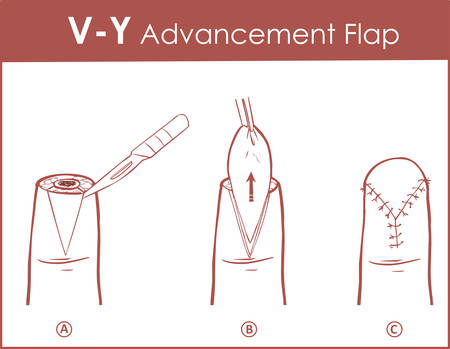 Vector illustration of a V-Y advancement flap Illustration