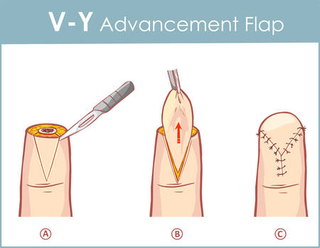 Vector illustration of a V-Y advancement flap 向量圖像
