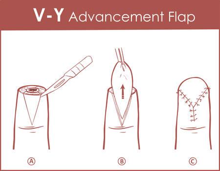 Vector illustration of a V-Y advancement flap Illustration