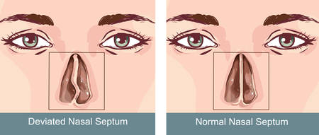 Nasal Septum Deviation Treatmen