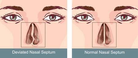 Tratamiento de desviación del tabique nasal
