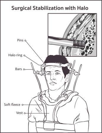 Vue latérale d'un homme adulte en traction du gilet Halo