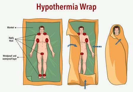 Ilustración vectorial de una envoltura de hipotermia y primeros auxilios.