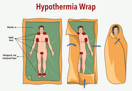 vector illustration of a hypothermia wrap and first aid