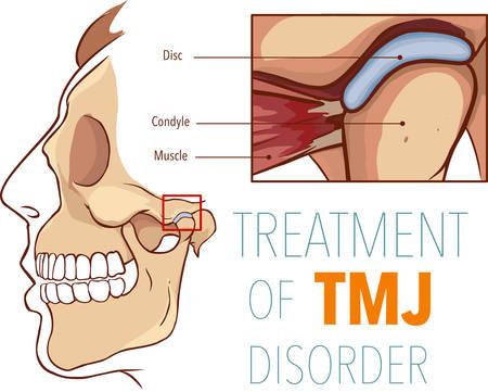Ilustración de vector de tratamiento del trastorno tmj