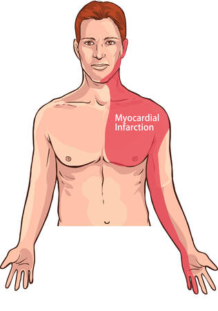 Vector illustration of a Heart attack pain location (Myocardial Infarction) Vector Illustration